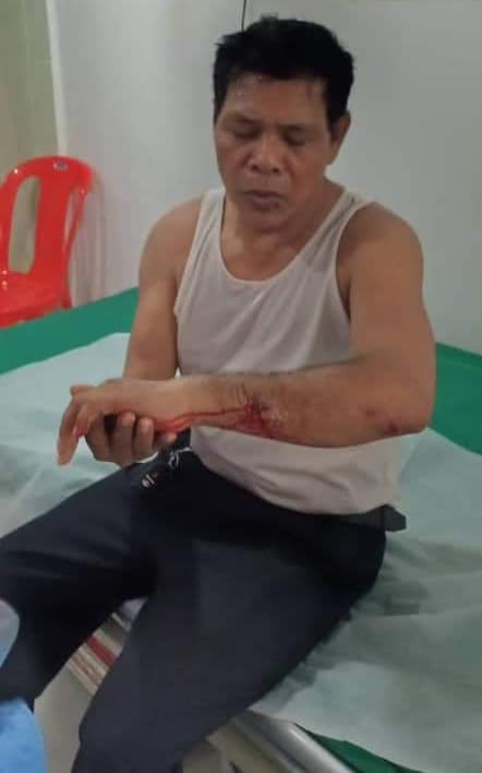 Sin Bona arrives at a hospital for treatment after being attacked by unknown assailants in Phnom Penh, Sept. 25, 2019. Credit: Bona Sophea