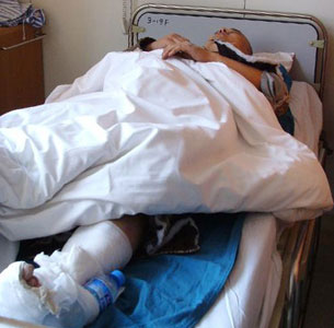 Zhu Hongxing lies in the hospital after being treated for a broken leg, Nov. 28, 2010.