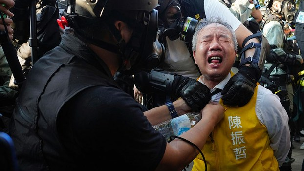 Richard Chan, a 48-year-old businessman who recently won election to Hong Kong's District Council, gets treated after being pepper-sprayed during protests, Nov. 2, 2019.