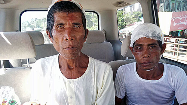 Two residents of Kyauktan village who were detained and beaten by Myanmar soldiers are transported from a hospital in Rathedaung township in Myanmar's northern Rakhine state, Oct. 31, 2019.