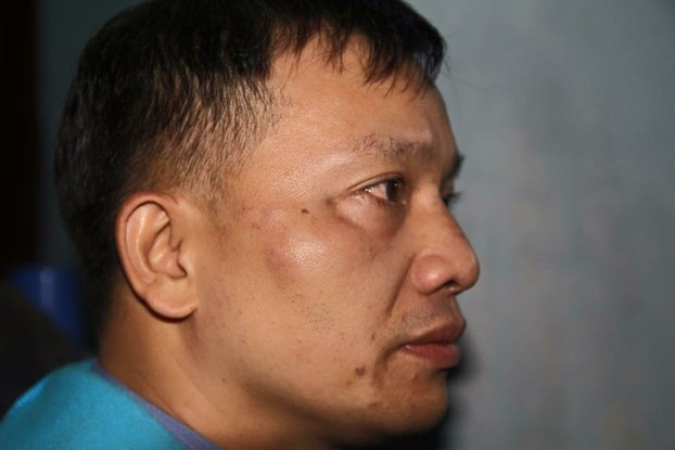 Nguyen Van Dai displays his face after he was beaten by masked assailants in Nghe An province, Dec. 6, 2015.
