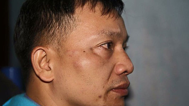 Dissident Vietnamese lawyer Nguyen Van Dai is shown after he was attacked by government-linked assailants, Dec. 6, 2015.