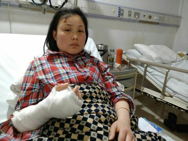 Wuhan petitioner Hu Yuling recovers in hospital after being beaten up. April 5, 2017.